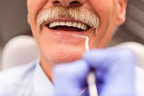 Part B Rebate Dental Care